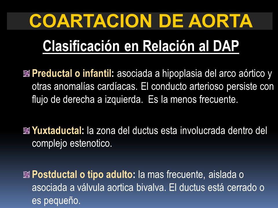 Clasificación en Relación al DAP