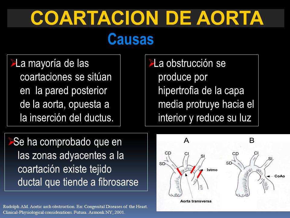 COARTACION DE AORTA Causas La mayoría de las coartaciones se sitúan