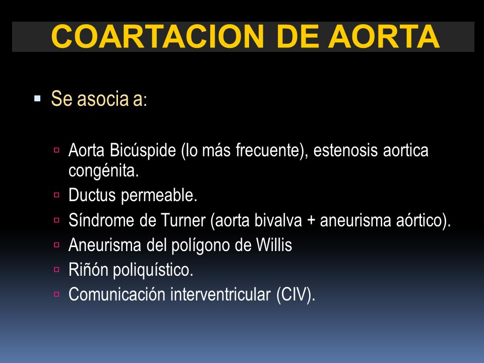 COARTACION DE AORTA Se asocia a: