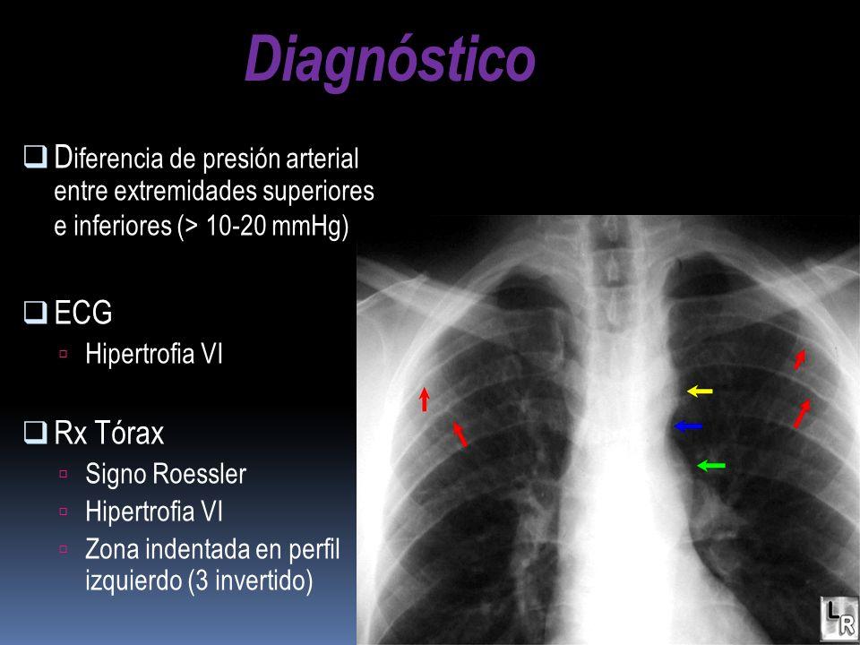 Diagnóstico Diferencia de presión arterial entre extremidades superiores e inferiores (> 10-20 mmHg)