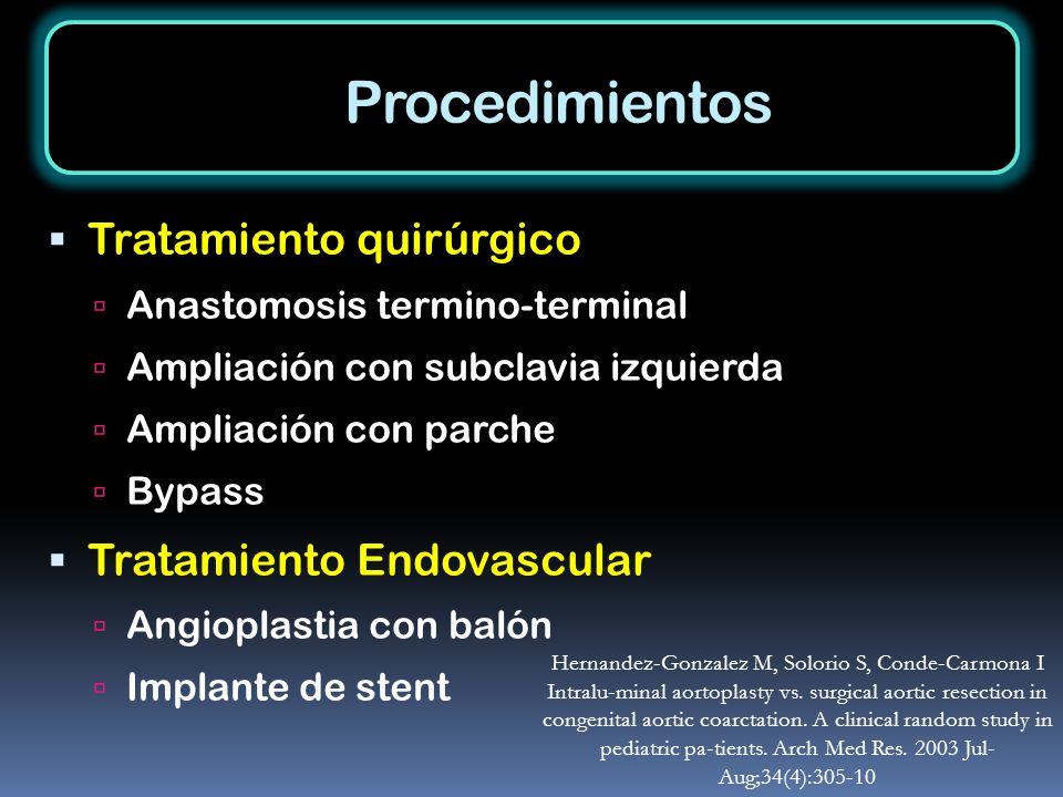 Procedimientos Tratamiento quirúrgico Tratamiento Endovascular