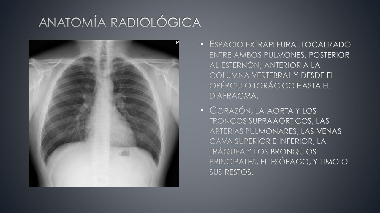 Moderno Radiografía Torácica Lateral Anatomía Elaboración - Anatomía ...