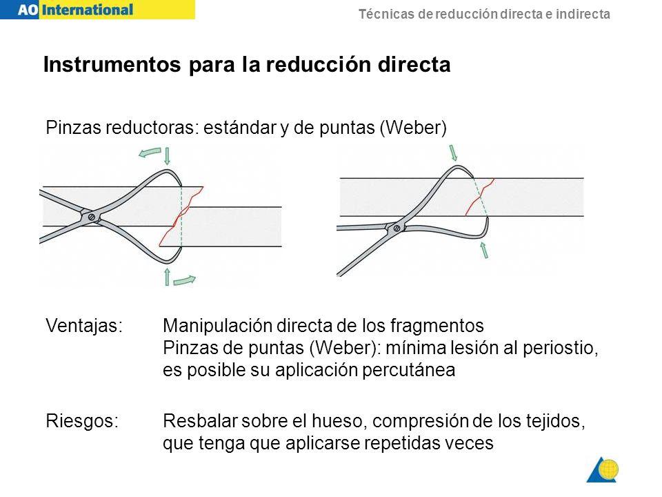 Instrumentos para la reducción directa
