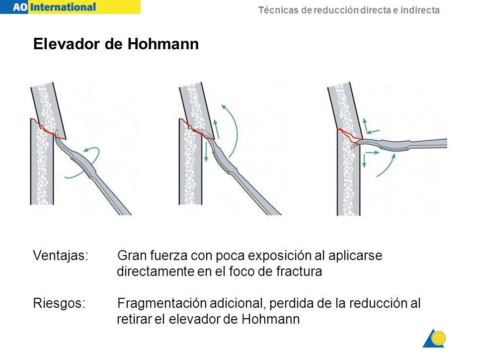 Elevador de Hohmann Ventajas: Gran fuerza con poca exposición al aplicarse. directamente en el foco de fractura.