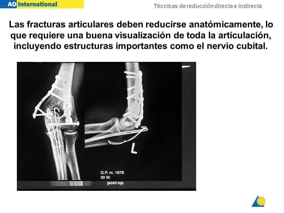Las fracturas articulares deben reducirse anatómicamente, lo que requiere una buena visualización de toda la articulación, incluyendo estructuras importantes como el nervio cubital.