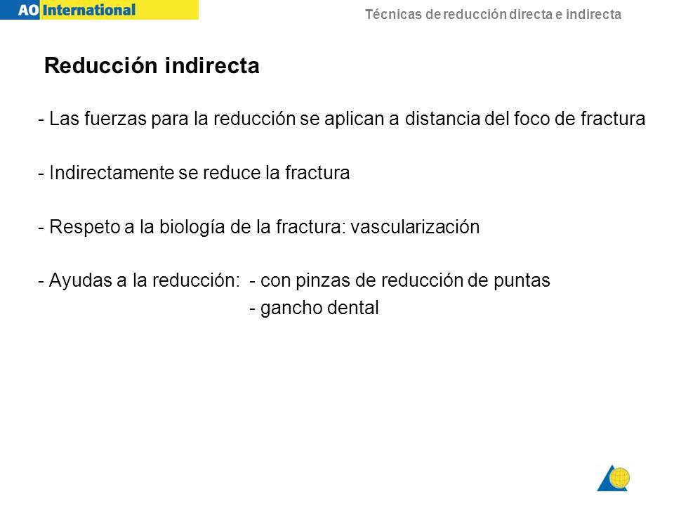Reducción indirecta - Las fuerzas para la reducción se aplican a distancia del foco de fractura. - Indirectamente se reduce la fractura.