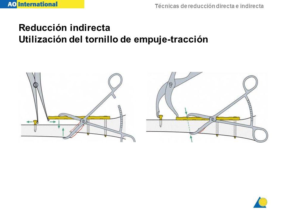 Reducción indirecta Utilización del tornillo de empuje-tracción