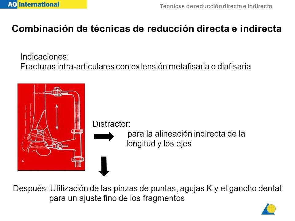 Combinación de técnicas de reducción directa e indirecta