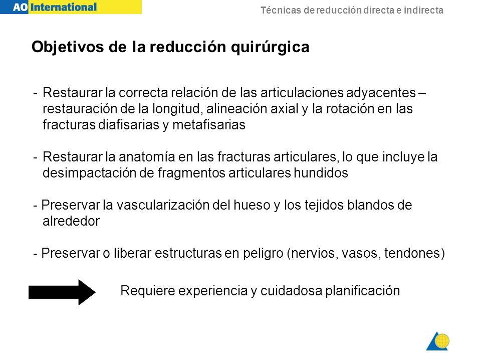 Objetivos de la reducción quirúrgica