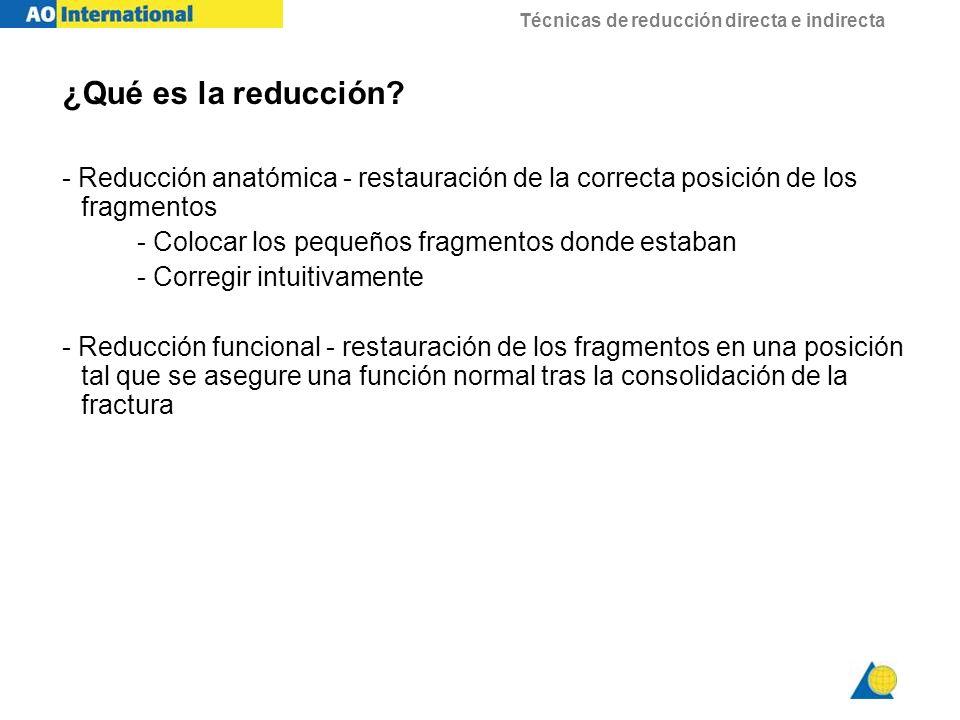 ¿Qué es la reducción - Reducción anatómica - restauración de la correcta posición de los fragmentos.
