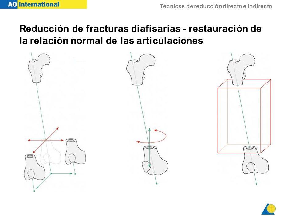 Reducción de fracturas diafisarias - restauración de la relación normal de las articulaciones