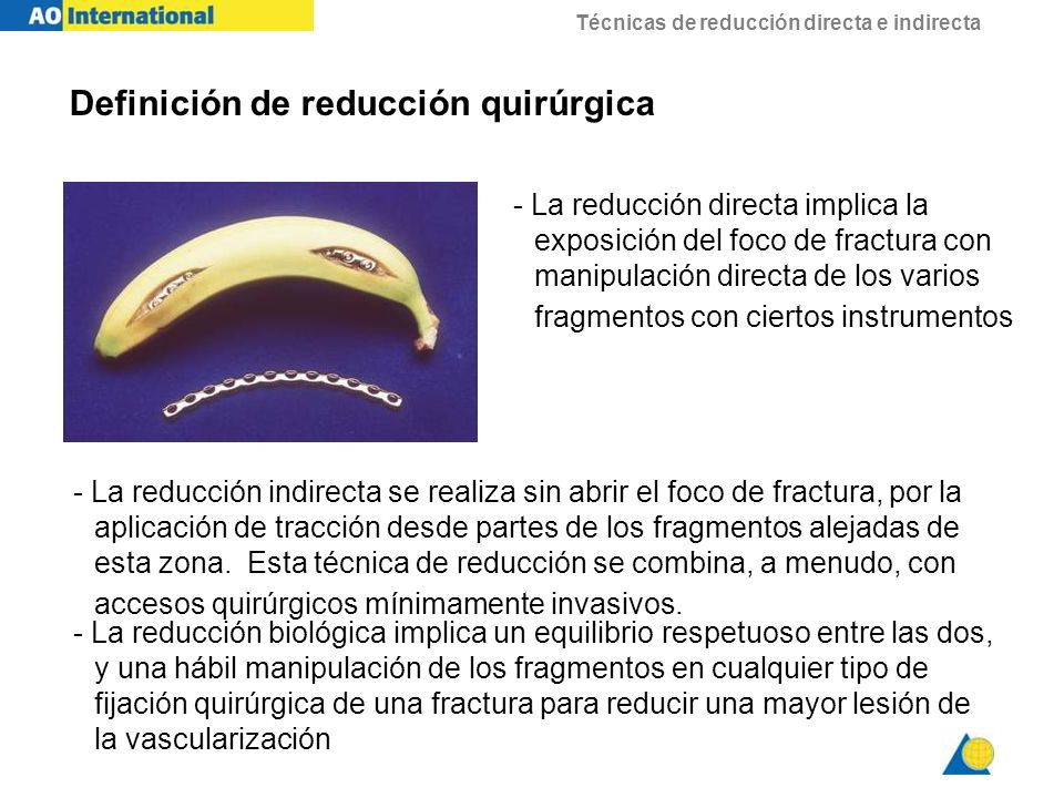 Definición de reducción quirúrgica