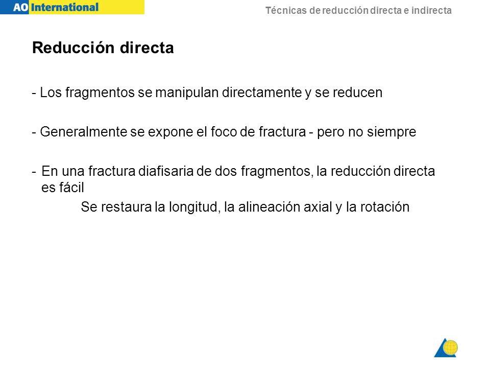 Reducción directa - Los fragmentos se manipulan directamente y se reducen. - Generalmente se expone el foco de fractura - pero no siempre.
