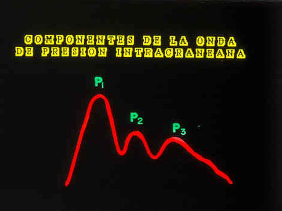 El reconocimiento de la curva normal de PIC es importante puesto que algunas ocasiones la disminución de la distensibilidad cerebral produce alteraciones en la forma de las ondas, antes de un cambio evidente en la presión.