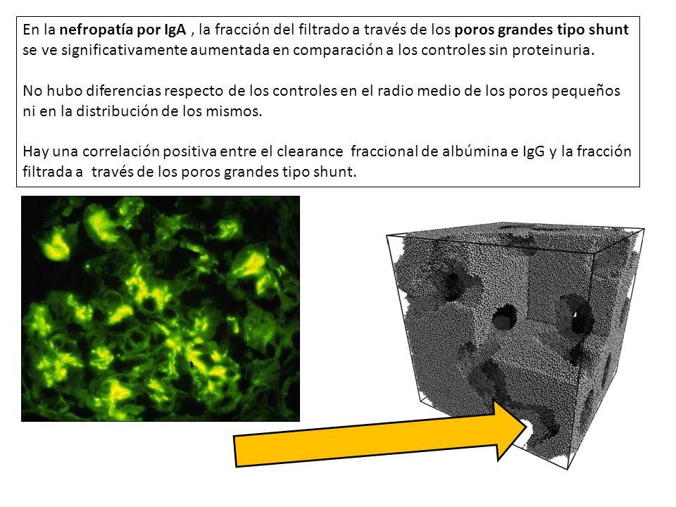 En la nefropatía por IgA , la fracción del filtrado a través de los poros grandes tipo shunt se ve significativamente aumentada en comparación a los controles sin proteinuria.
