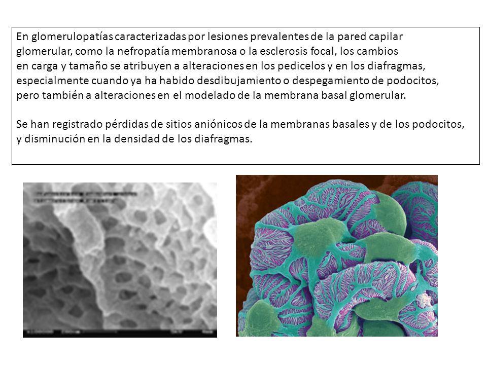 En glomerulopatías caracterizadas por lesiones prevalentes de la pared capilar