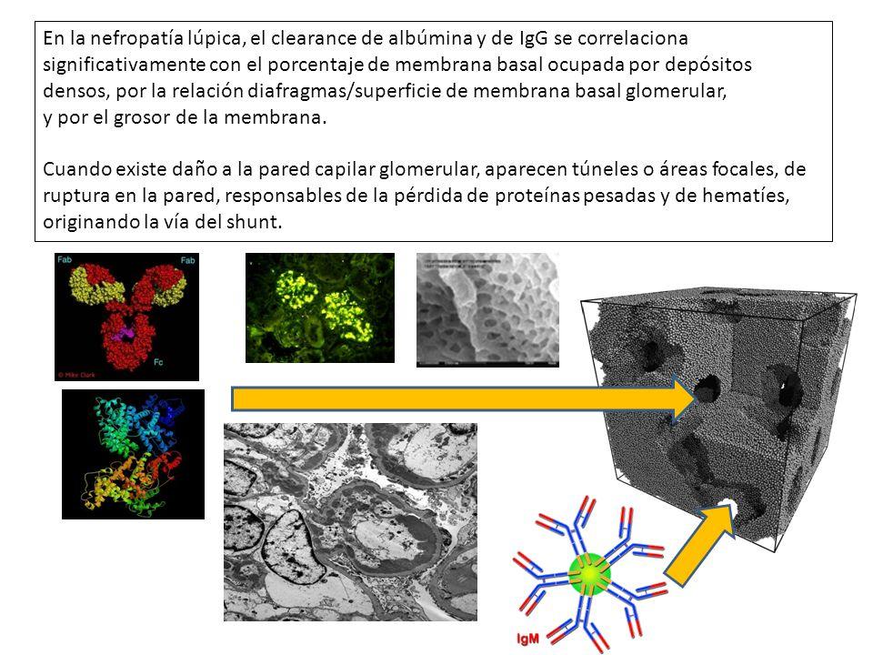 En la nefropatía lúpica, el clearance de albúmina y de IgG se correlaciona