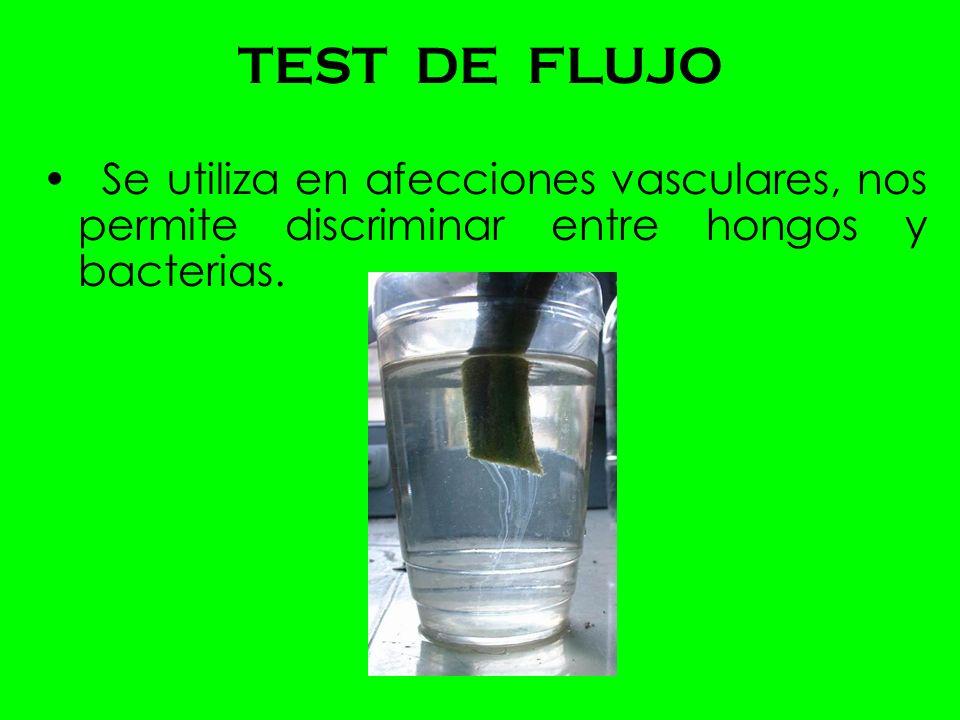 TEST DE FLUJO Se utiliza en afecciones vasculares, nos permite discriminar entre hongos y bacterias.