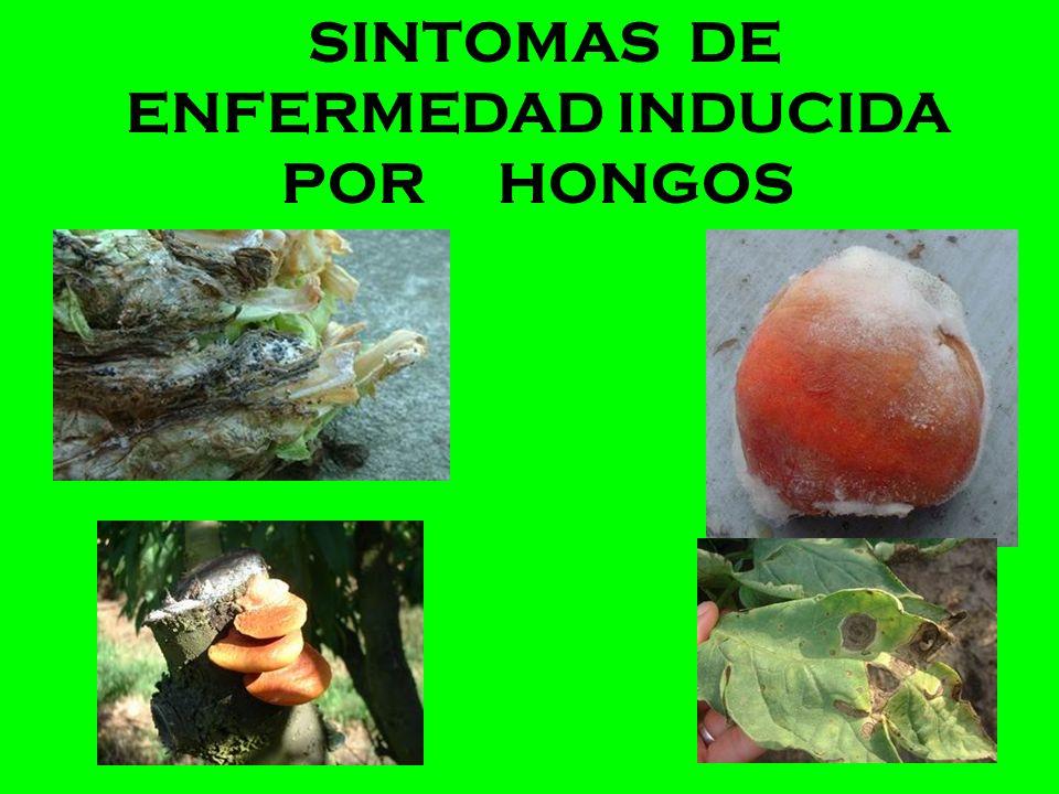 SINTOMAS DE ENFERMEDAD INDUCIDA POR HONGOS
