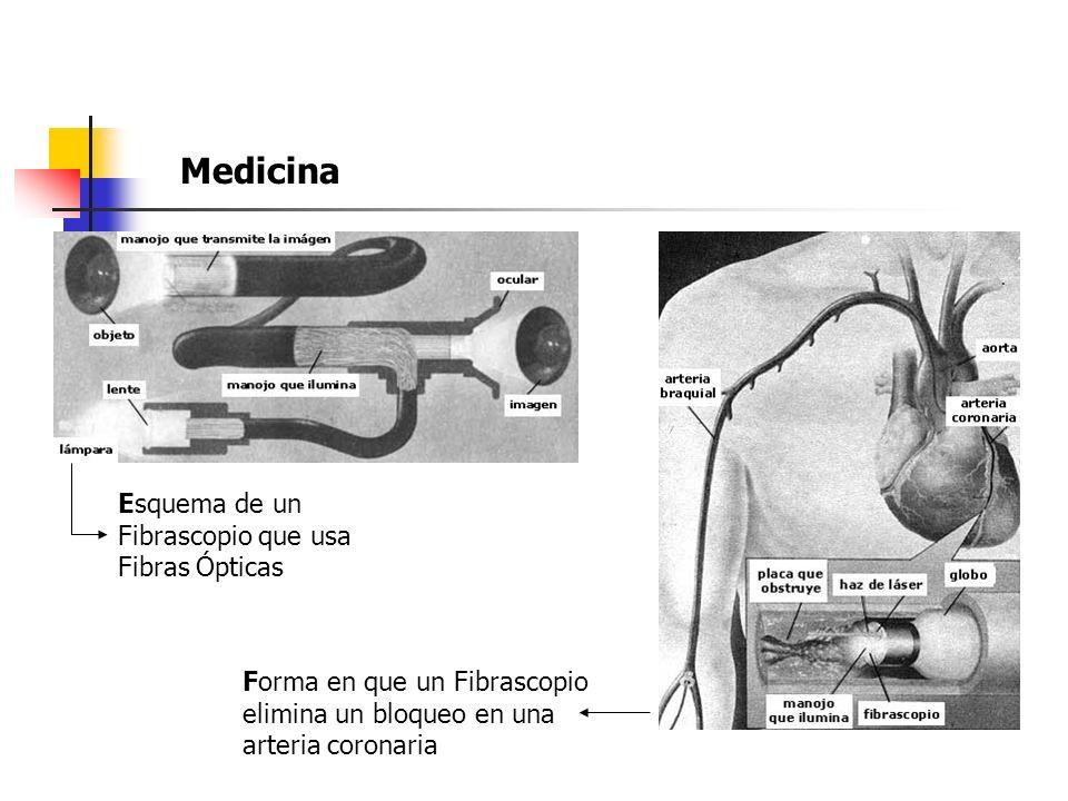 Medicina Esquema de un Fibrascopio que usa Fibras Ópticas