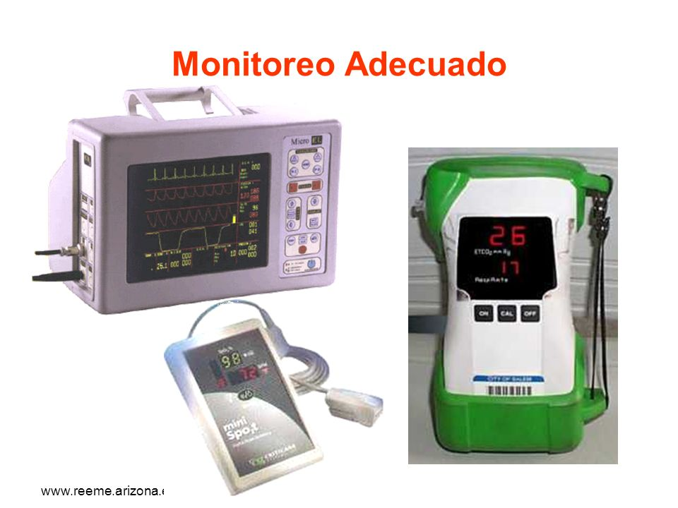 Monitoreo Adecuado www.reeme.arizona.edu
