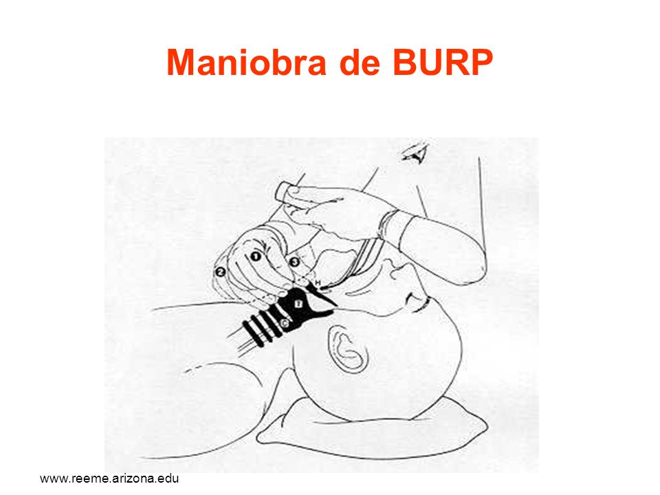 Maniobra de BURP www.reeme.arizona.edu