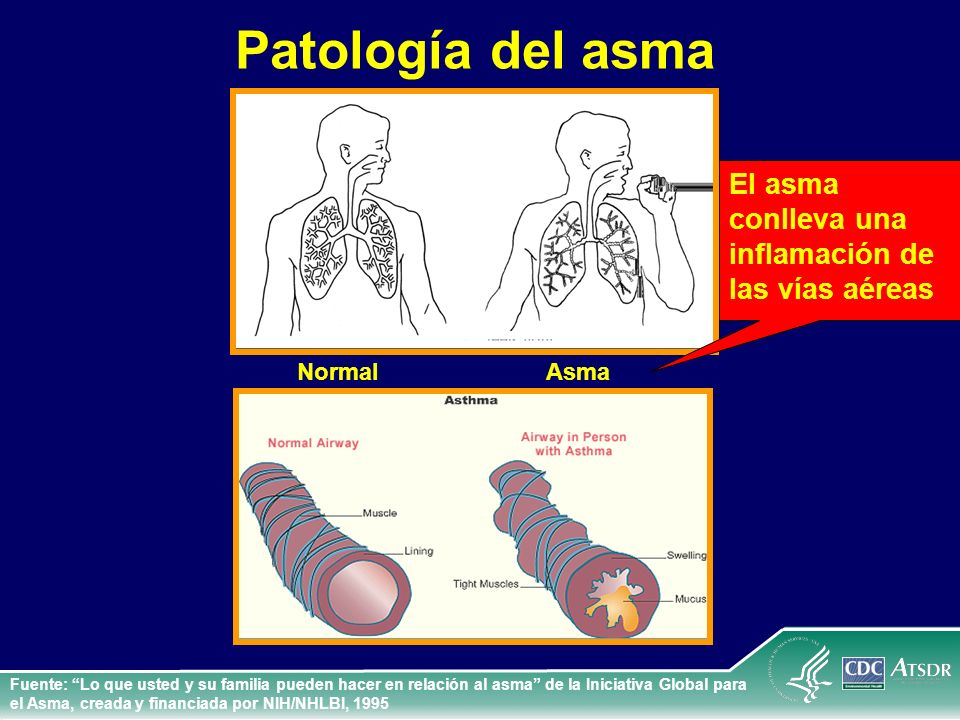 Patología del asma El asma conlleva una inflamación de las vías aéreas