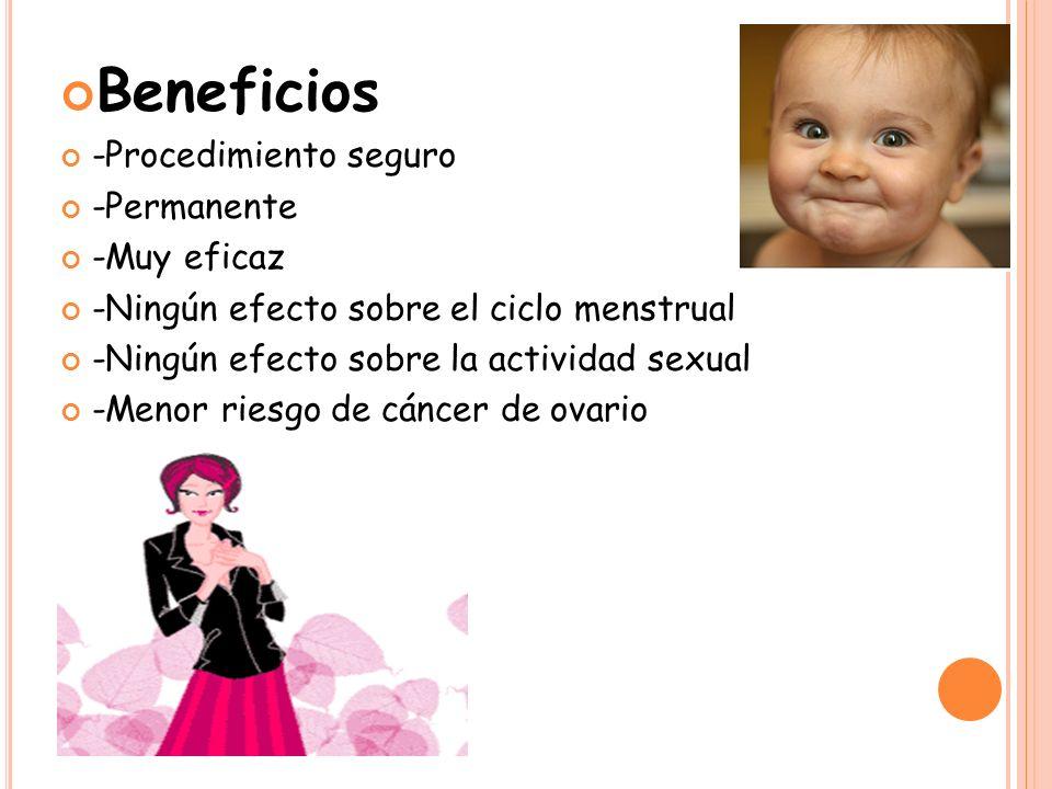 Beneficios -Procedimiento seguro -Permanente -Muy eficaz