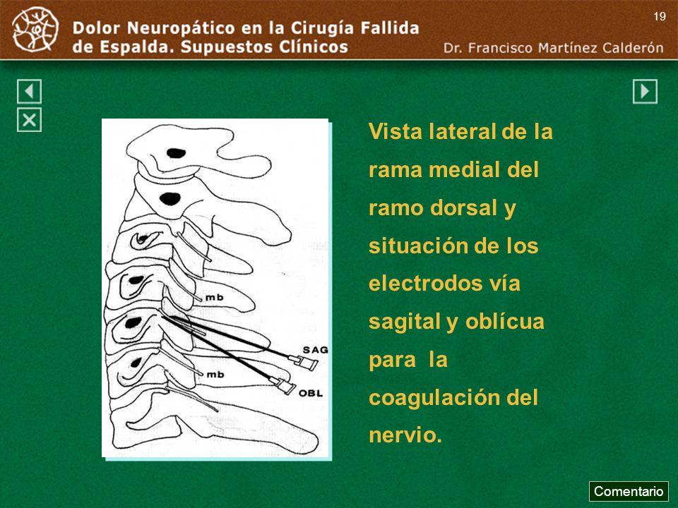 19 Vista lateral de la rama medial del ramo dorsal y situación de los electrodos vía sagital y oblícua para la coagulación del nervio.