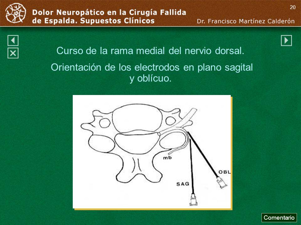 Curso de la rama medial del nervio dorsal.