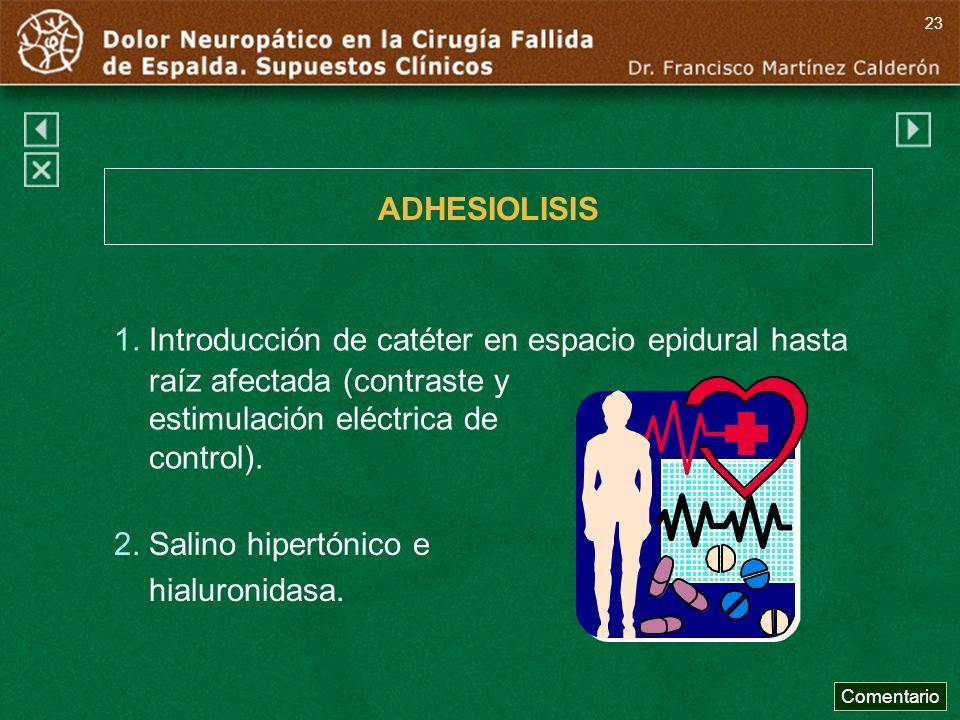 1. Introducción de catéter en espacio epidural hasta