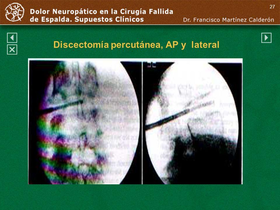 Discectomía percutánea, AP y lateral