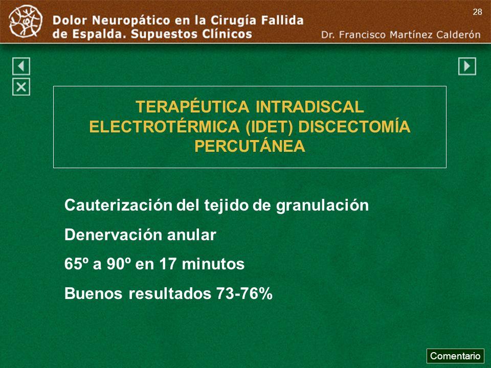 TERAPÉUTICA INTRADISCAL ELECTROTÉRMICA (IDET) DISCECTOMÍA PERCUTÁNEA