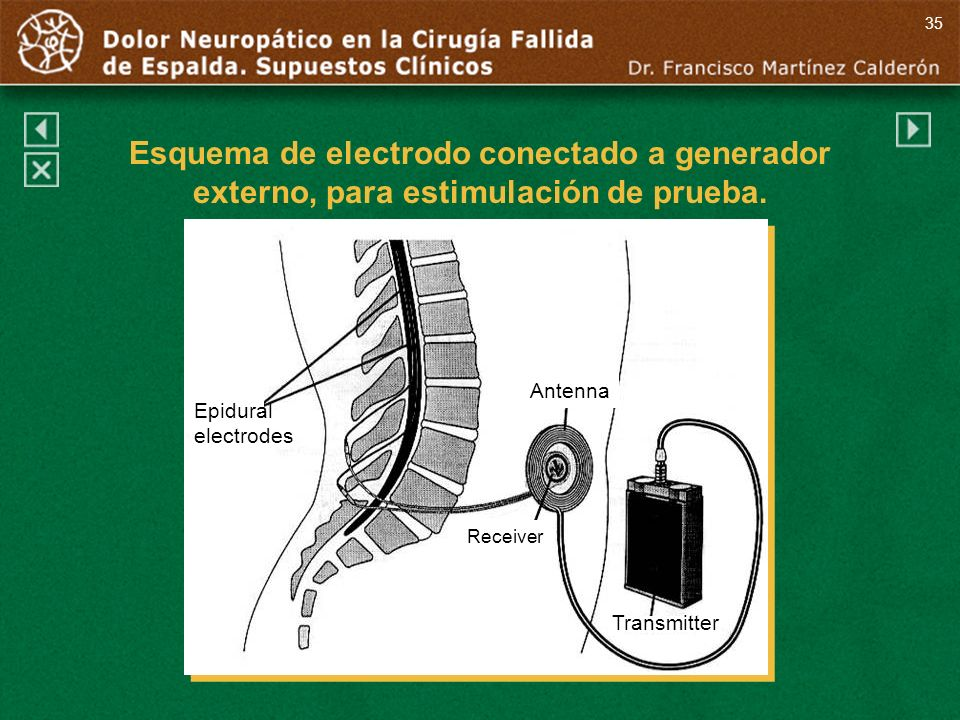 35 Esquema de electrodo conectado a generador externo, para estimulación de prueba. Antenna. Epidural.