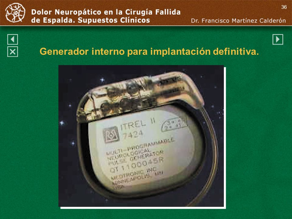 Generador interno para implantación definitiva.