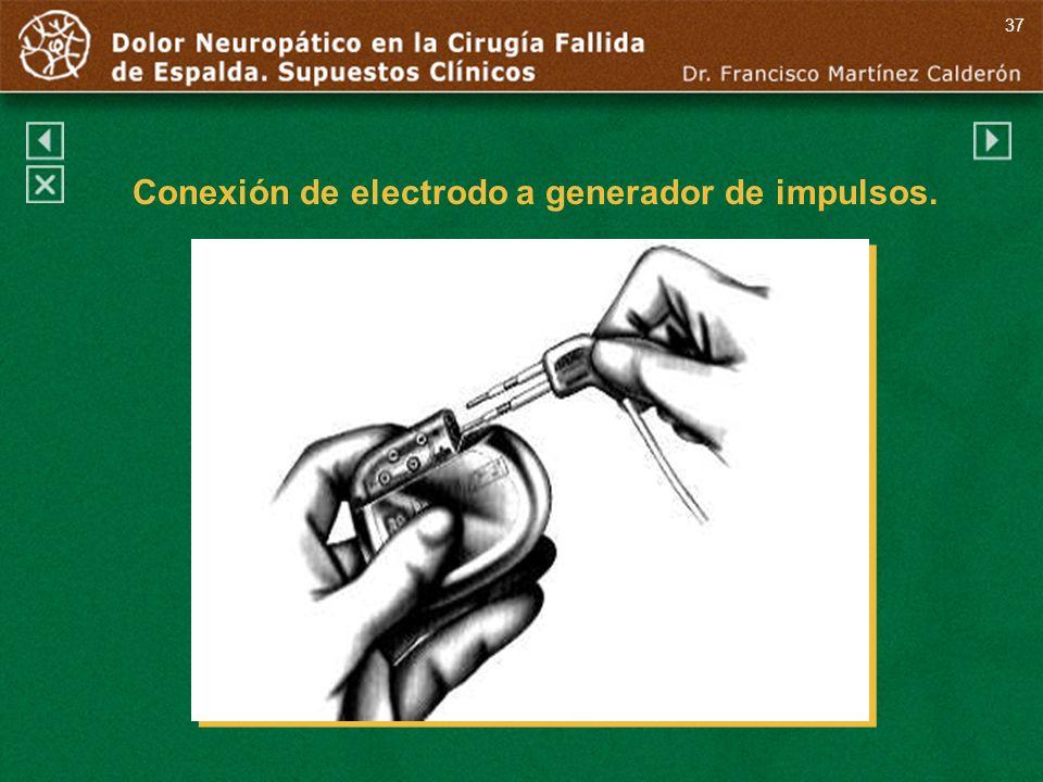 Conexión de electrodo a generador de impulsos.