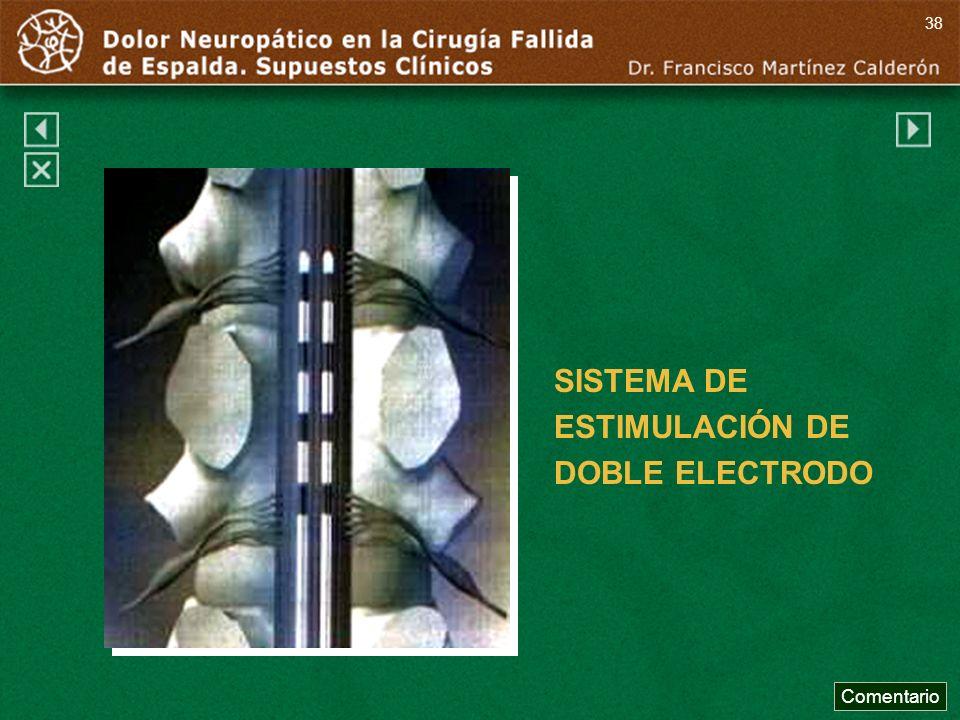 SISTEMA DE ESTIMULACIÓN DE DOBLE ELECTRODO