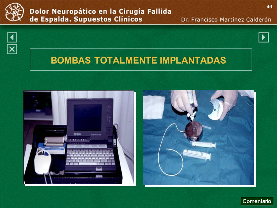 BOMBAS TOTALMENTE IMPLANTADAS