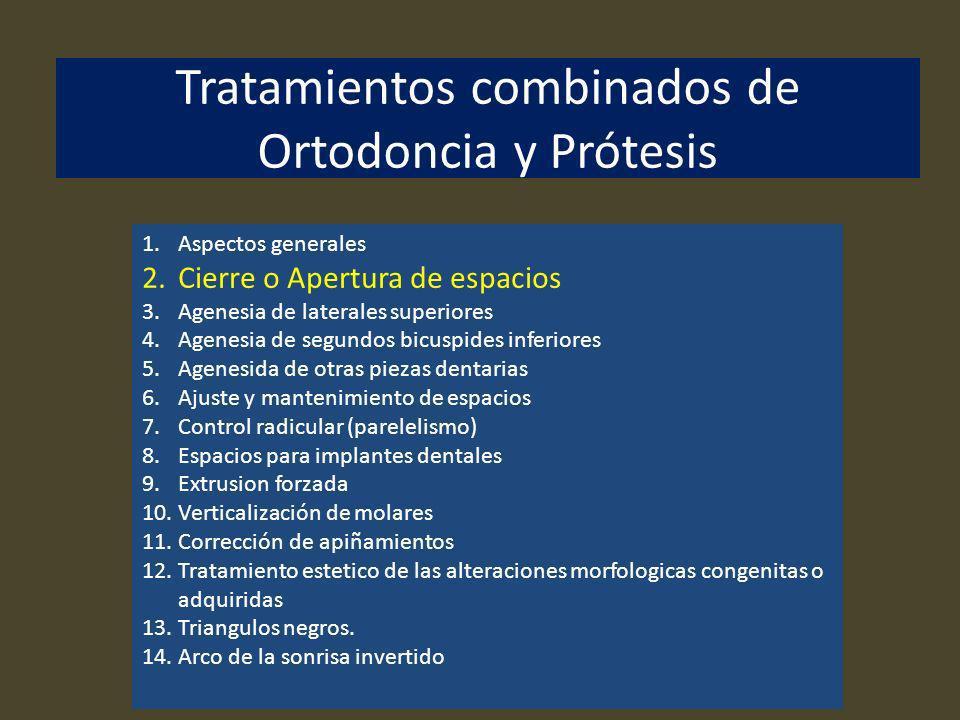 Tratamientos combinados de Ortodoncia y Prótesis