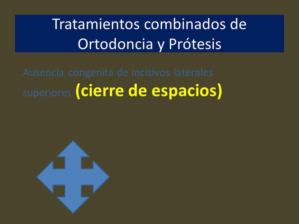 Ausencia congenita de incisivos laterales superiores (cierre de espacios)