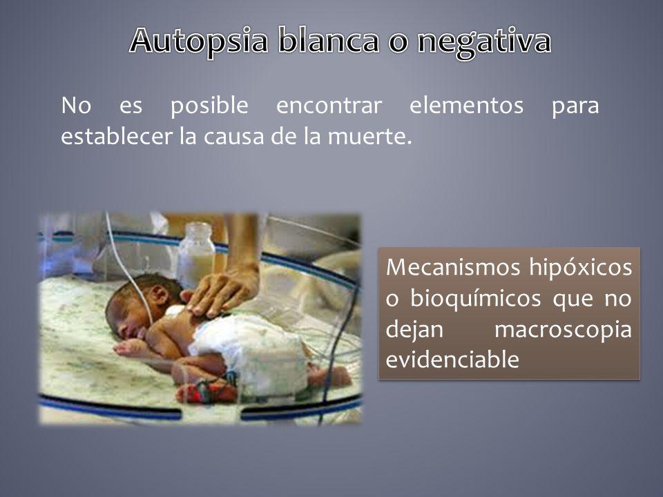 autopsia medicolegal