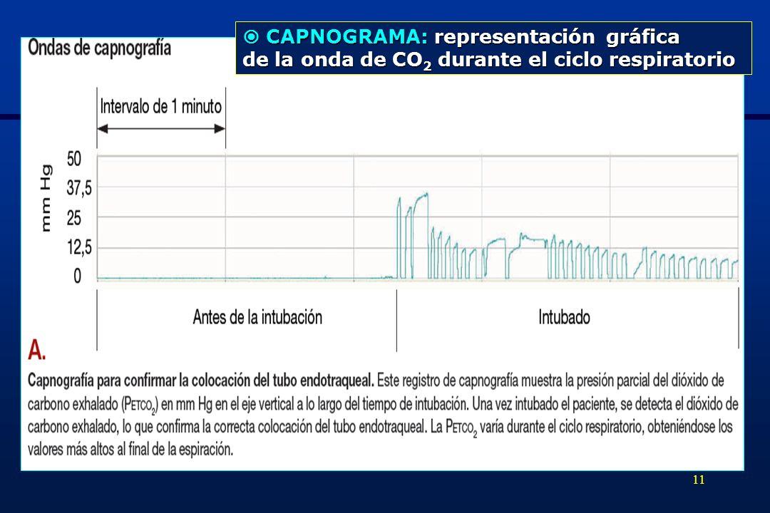  CAPNOGRAMA: representación gráfica