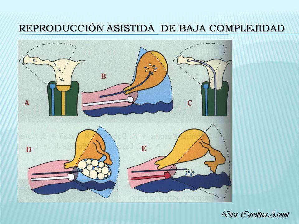 REPRODUCCIÓN ASISTIDA DE BAJA COMPLEJIDAD