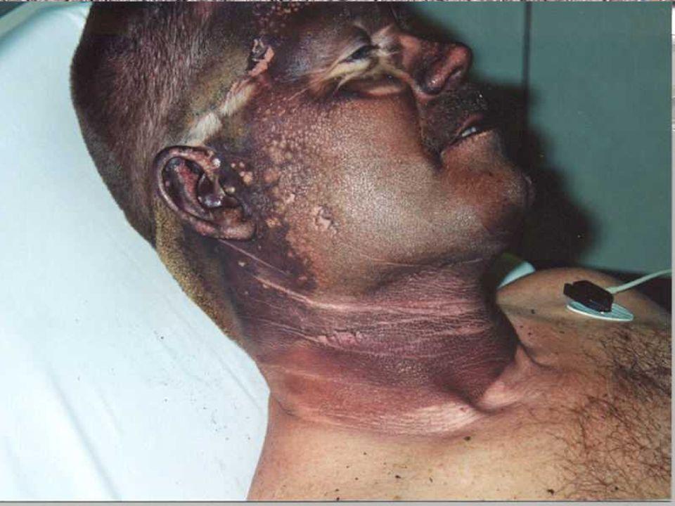 Estas son fotografías debido a accidentes por relámpago de arco.