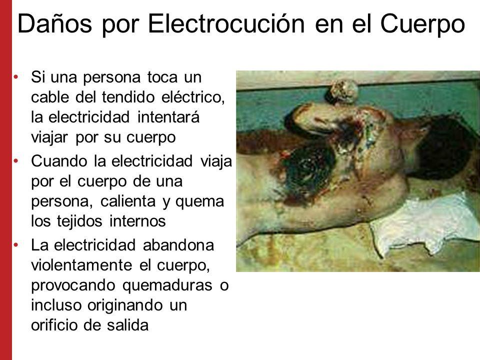 Daños por Electrocución en el Cuerpo