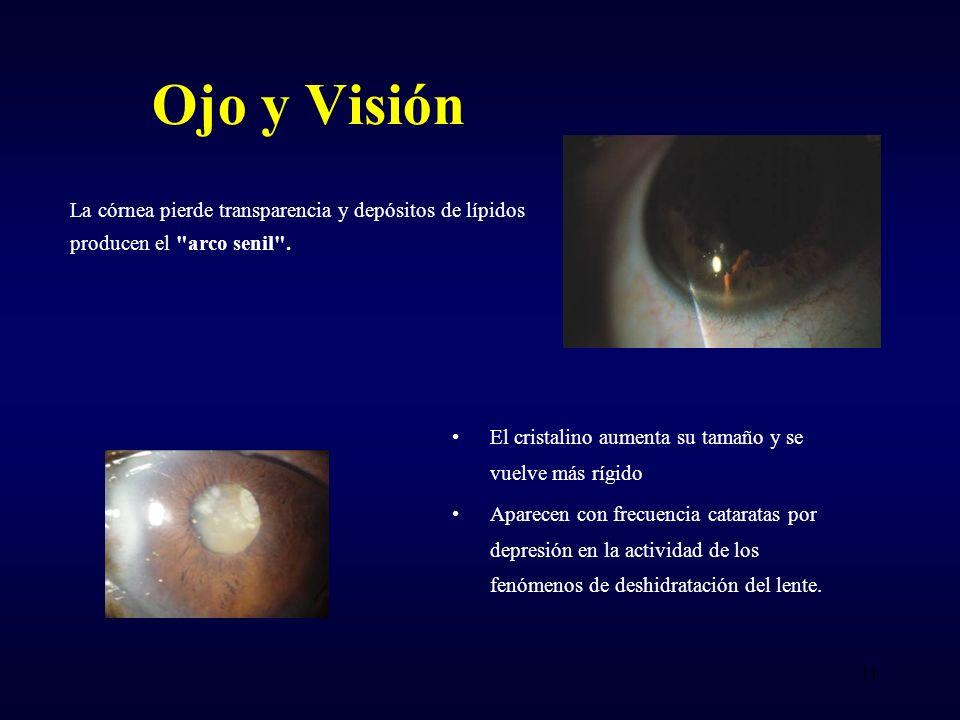 Ojo y Visión La córnea pierde transparencia y depósitos de lípidos producen el arco senil . El cristalino aumenta su tamaño y se vuelve más rígido.