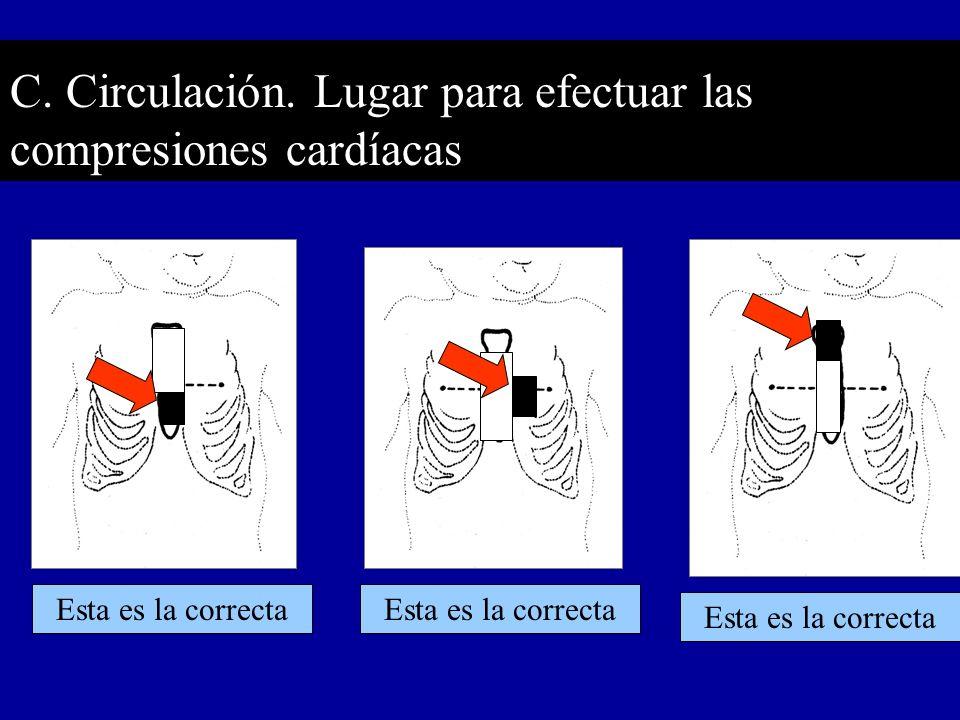 C. Circulación. Lugar para efectuar las compresiones cardíacas