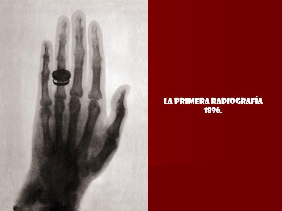 La primera radiografía 1896.