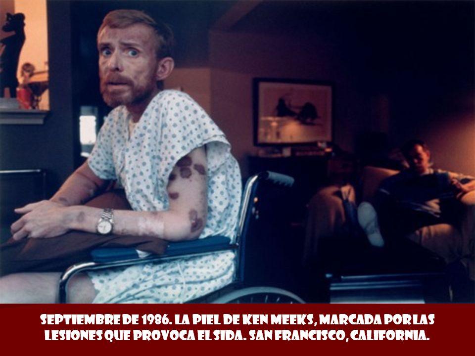 Septiembre de 1986.La piel de Ken Meeks, marcada por las lesiones que provoca el Sida.