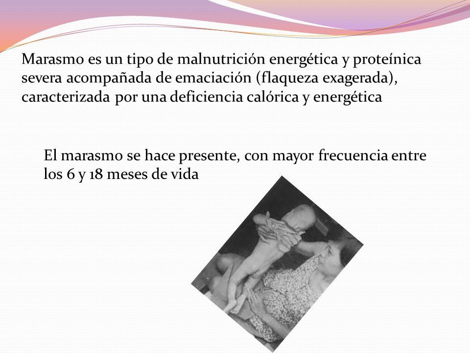 Marasmo es un tipo de malnutrición energética y proteínica severa acompañada de emaciación (flaqueza exagerada), caracterizada por una deficiencia calórica y energética